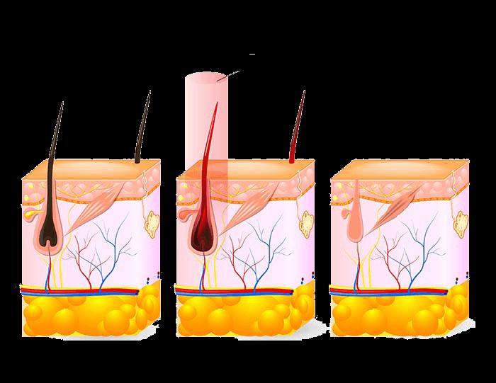 haargroei-laser-ontharen