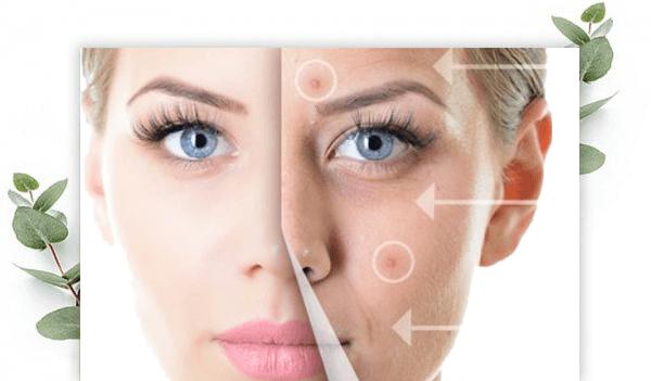pure-acne-therapie