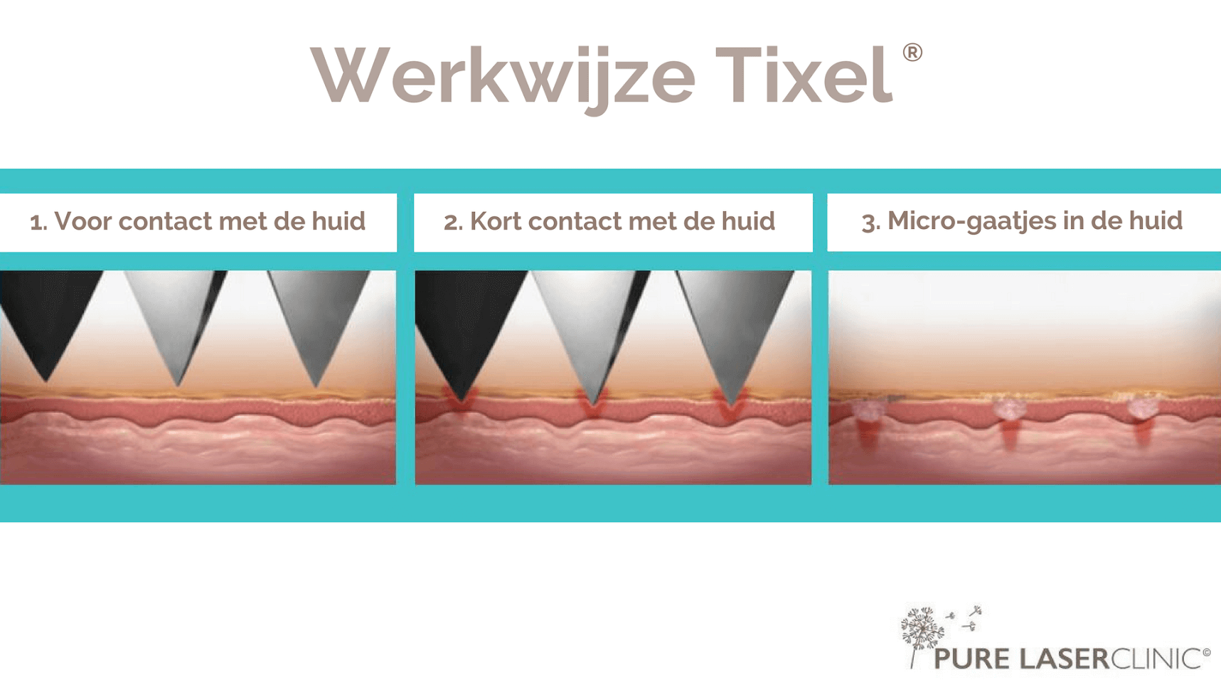 Tixel Pure Laserclinic